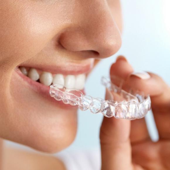 Ortodoncia invisible, ¿qué es?